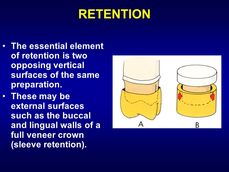RETENTION The essential element of retention is two opposing vertical surfaces of the same preparation.