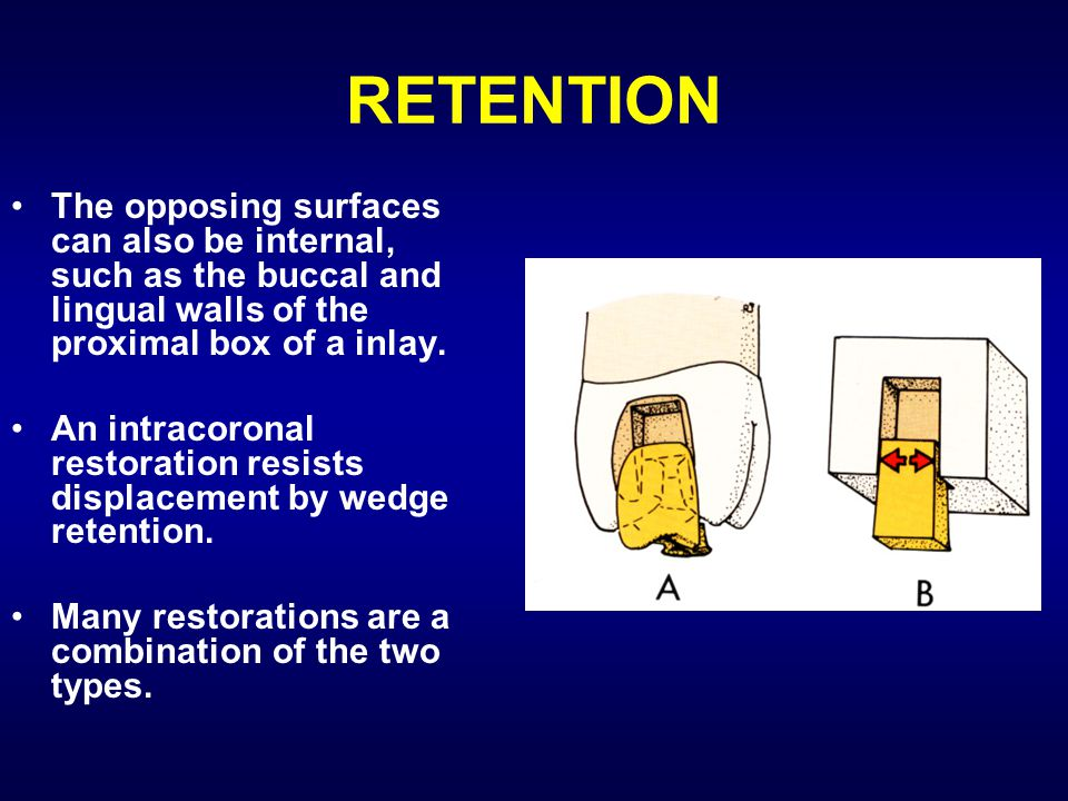 RETENTION The opposing surfaces can also be internal, such as the buccal and lingual walls of the proximal box of a inlay.