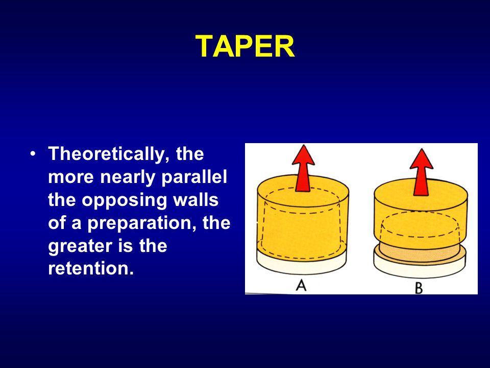 TAPER Theoretically, the more nearly parallel the opposing walls of a preparation, the greater is the retention.