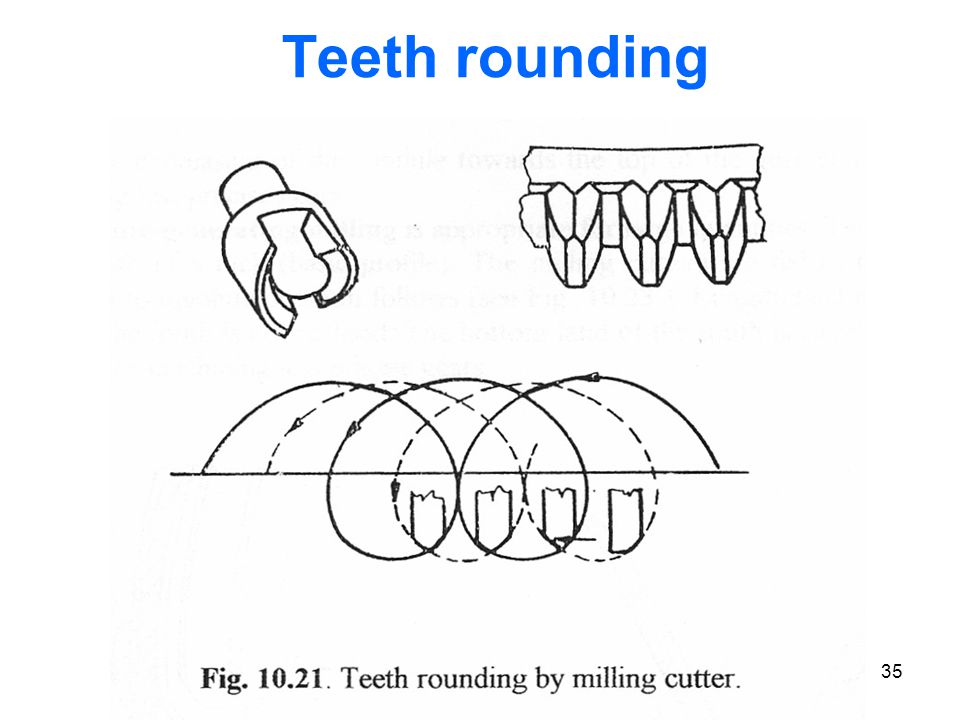 Teeth rounding