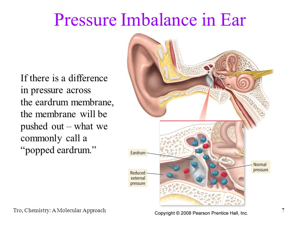 Pressure Imbalance in Ear