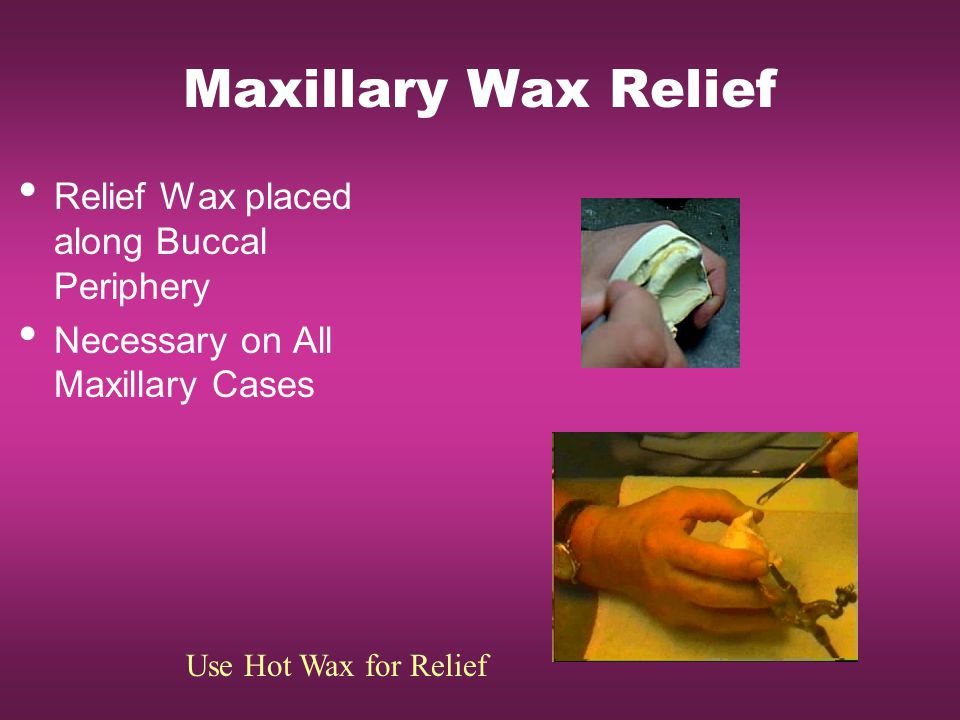 Maxillary Wax Relief Relief Wax placed along Buccal Periphery