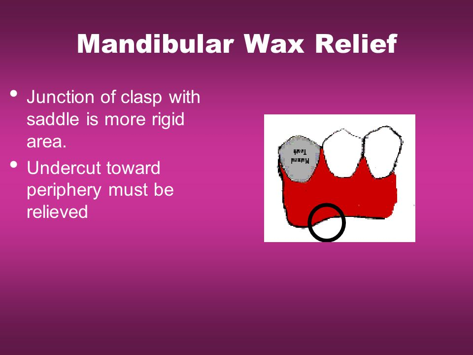 Mandibular Wax Relief Junction of clasp with saddle is more rigid area.
