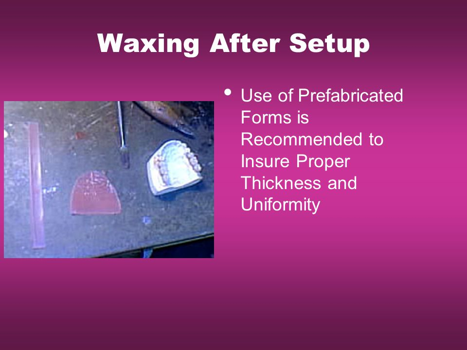 Waxing After Setup Use of Prefabricated Forms is Recommended to Insure Proper Thickness and Uniformity.