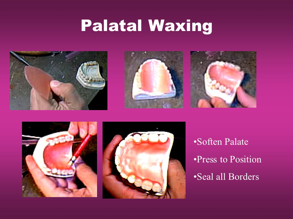 Palatal Waxing Soften Palate Press to Position Seal all Borders