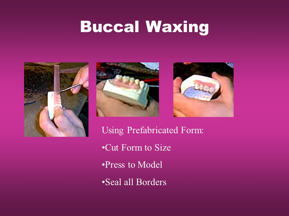 Buccal Waxing Using Prefabricated Form: Cut Form to Size