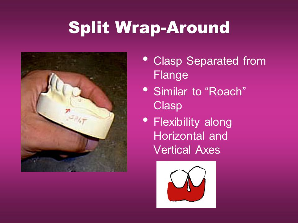 Split Wrap-Around Clasp Separated from Flange Similar to Roach Clasp