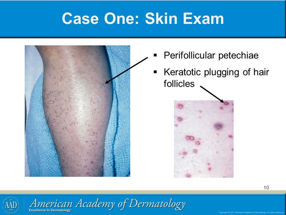 Case One: Skin Exam Perifollicular petechiae