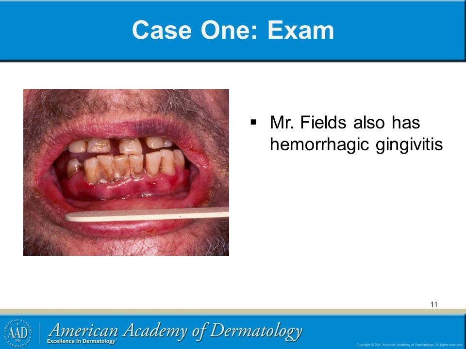 Case One: Exam Mr. Fields also has hemorrhagic gingivitis