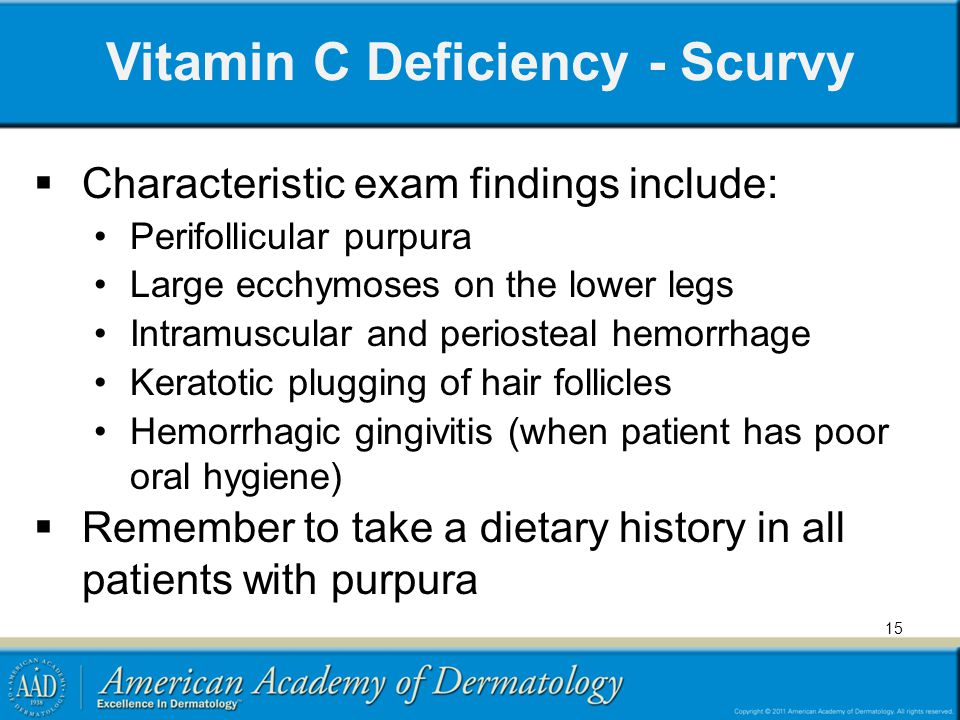 vitamin c deficiency diseases pdf