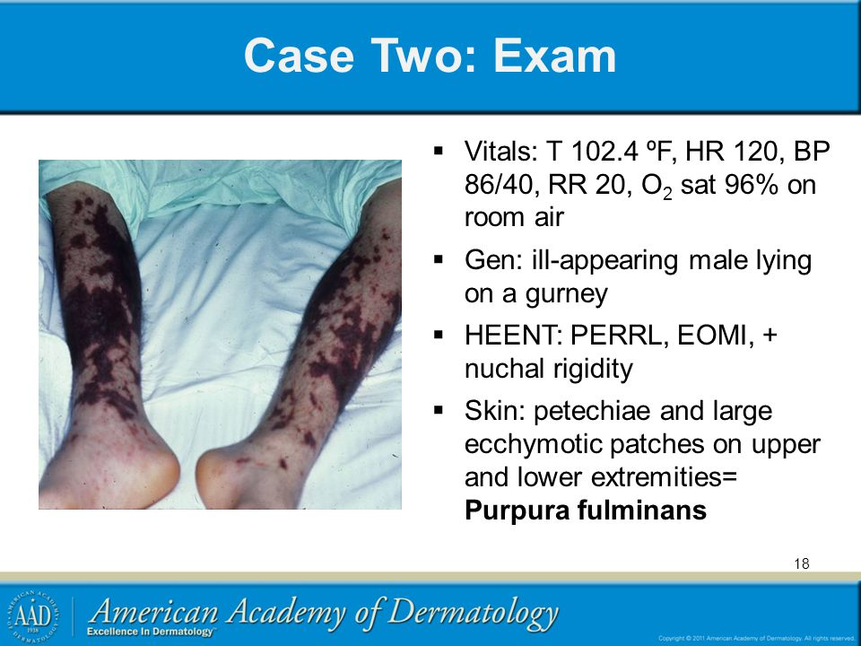 Case Two: Exam Vitals: T 102.4 ºF, HR 120, BP 86/40, RR 20, O2 sat 96% on room air. Gen: ill-appearing male lying on a gurney.