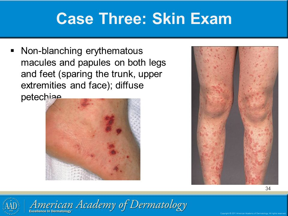Case Three: Skin Exam