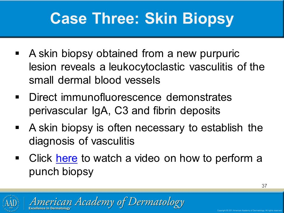 Case Three: Skin Biopsy