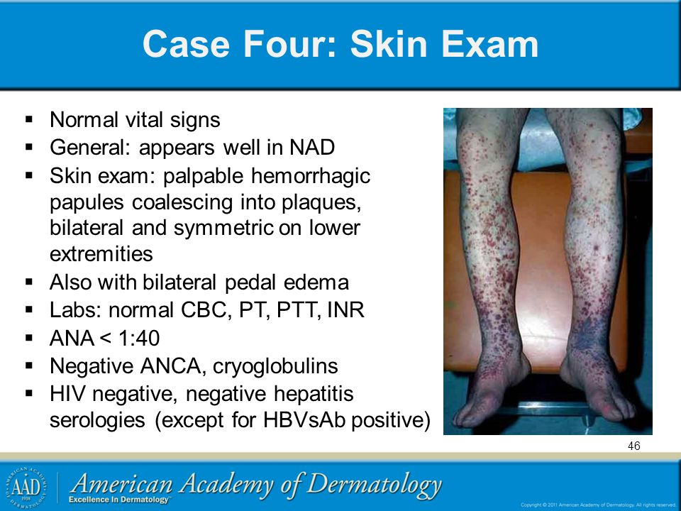 Case Four: Skin Exam Normal vital signs General: appears well in NAD