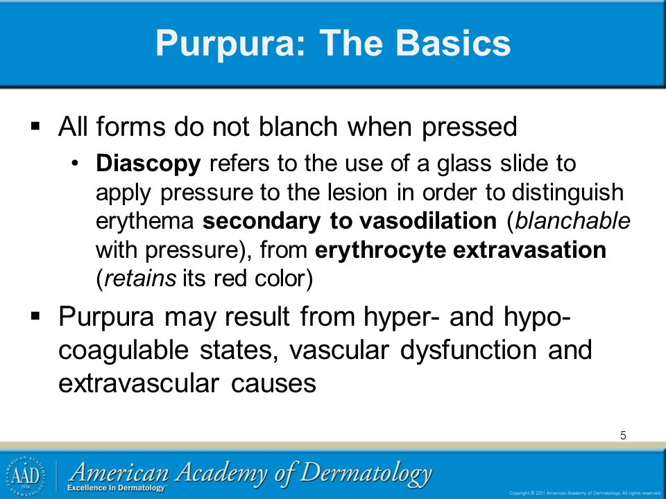 Purpura: The Basics All forms do not blanch when pressed