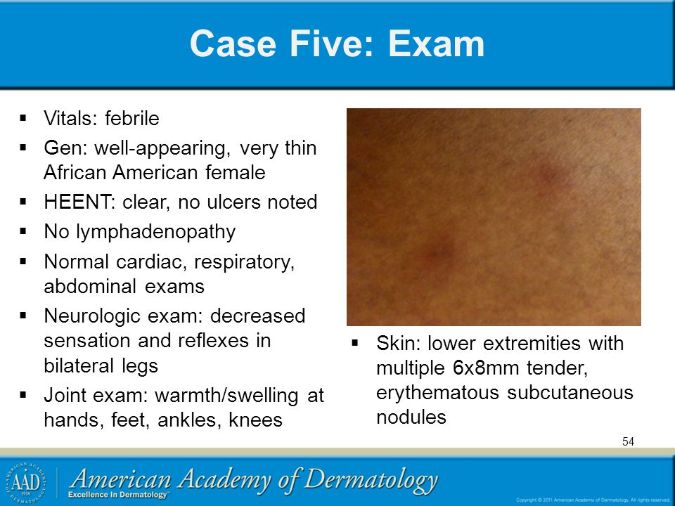 Case Five: Exam Vitals: febrile