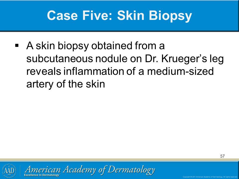 Case Five: Skin Biopsy