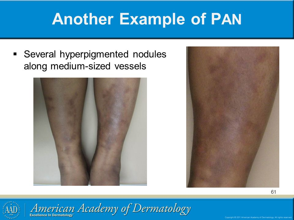 Another Example of PAN Several hyperpigmented nodules along medium-sized vessels