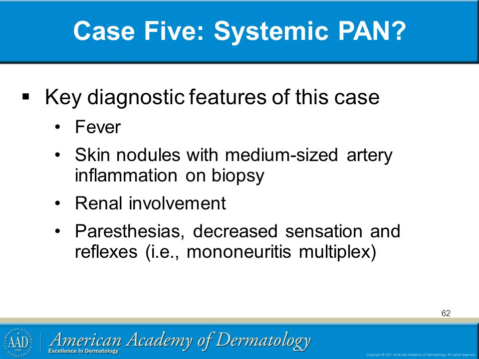 Case Five: Systemic PAN