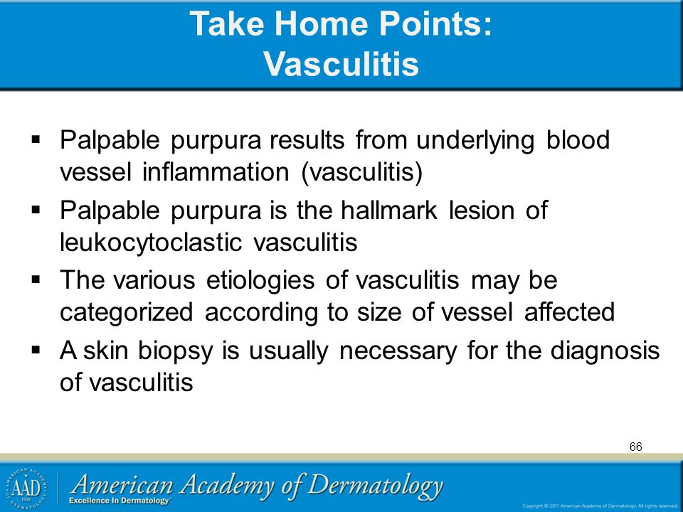 Take Home Points: Vasculitis