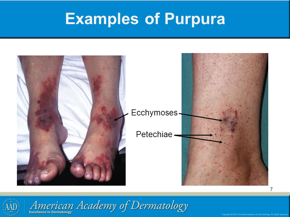 Petechiae, Purpura and Vasculitis - ppt video online download
