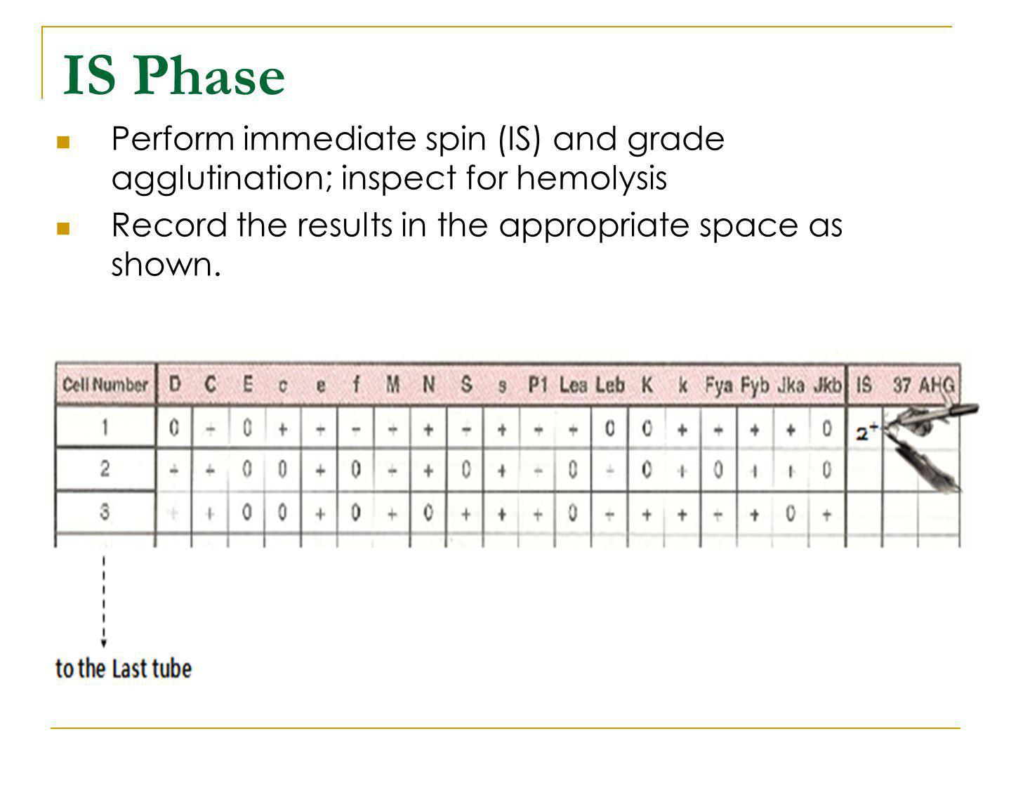 IS Phase Perform immediate spin (IS) and grade agglutination; inspect for hemolysis.