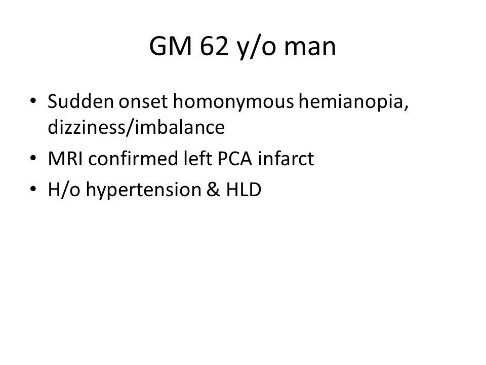 GM 62 y/o man Sudden onset homonymous hemianopia, dizziness/imbalance