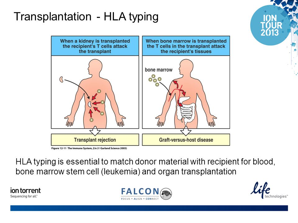 Transplantation - HLA typing