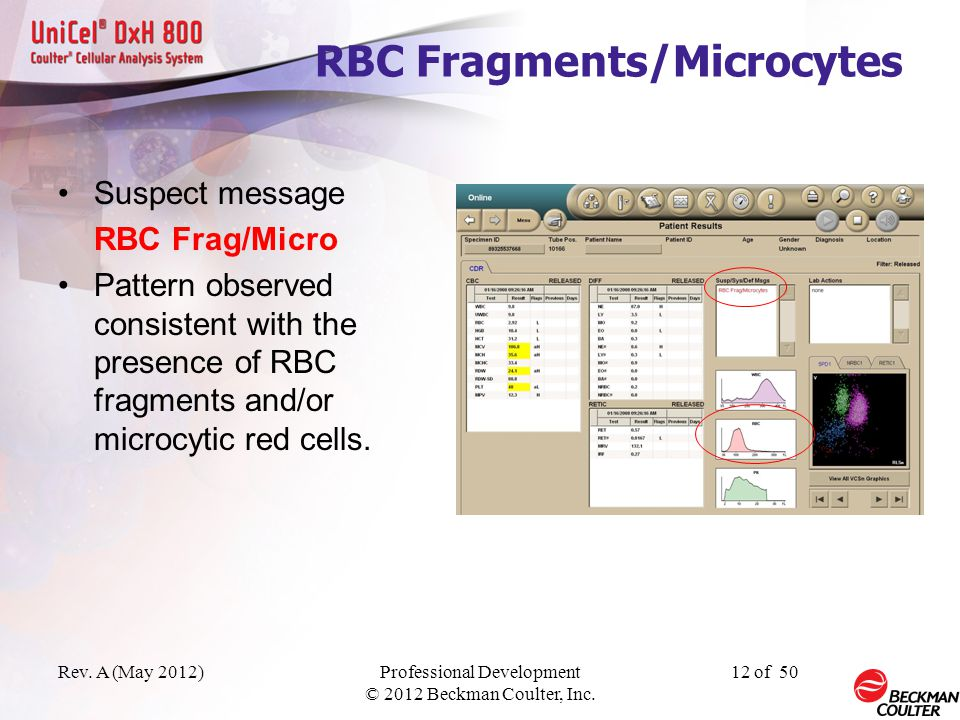 RBC Fragments/Microcytes