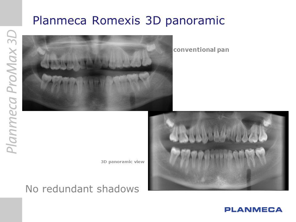Planmeca Romexis 3D panoramic