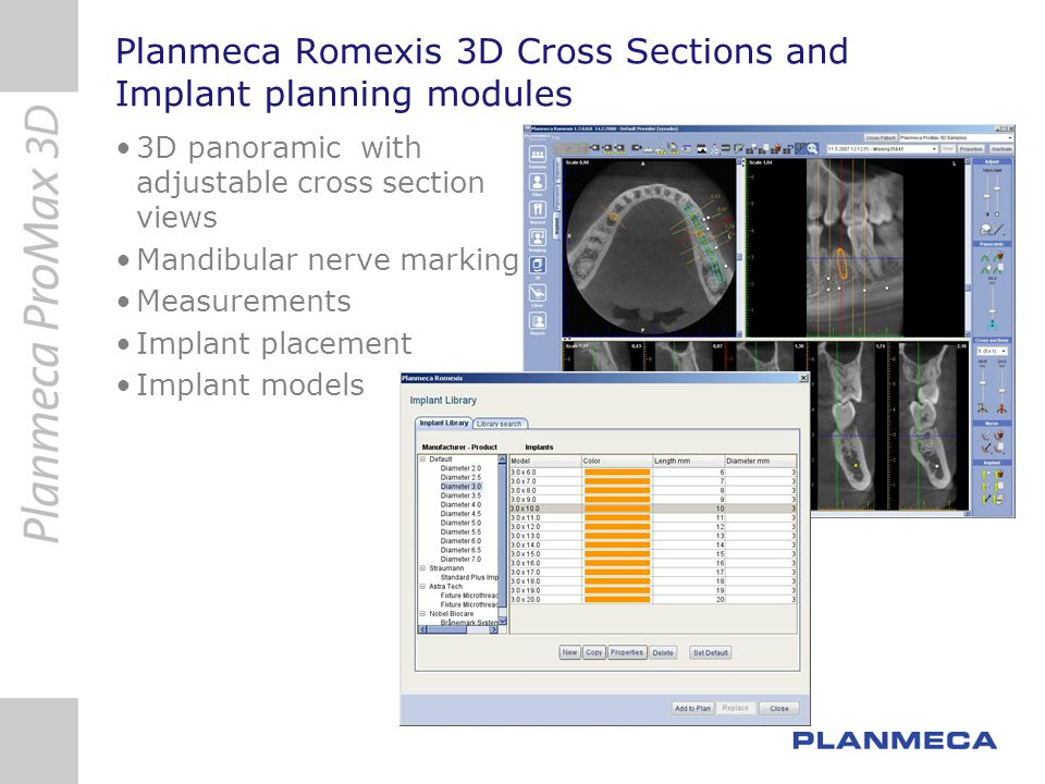 Planmeca Romexis 3D Cross Sections and Implant planning modules