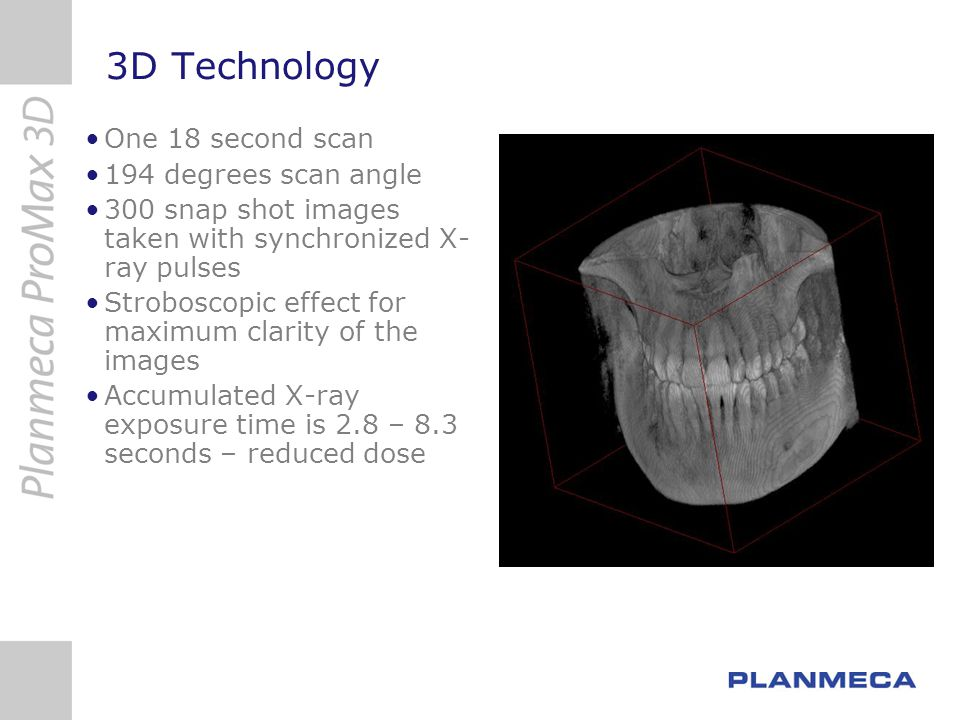 3D Technology One 18 second scan 194 degrees scan angle
