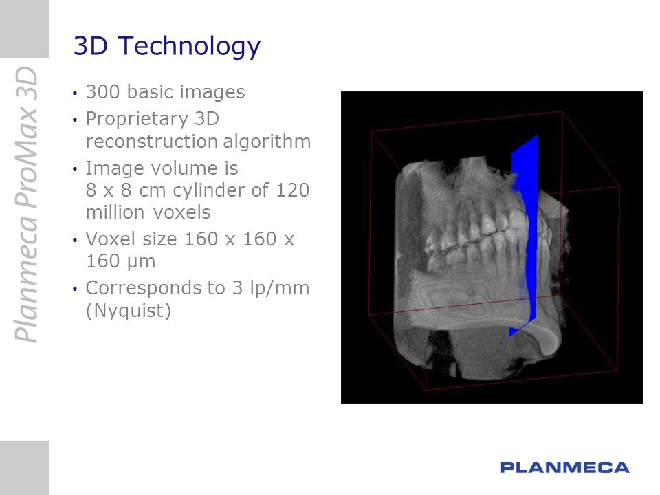 3D Technology 300 basic images Proprietary 3D reconstruction algorithm