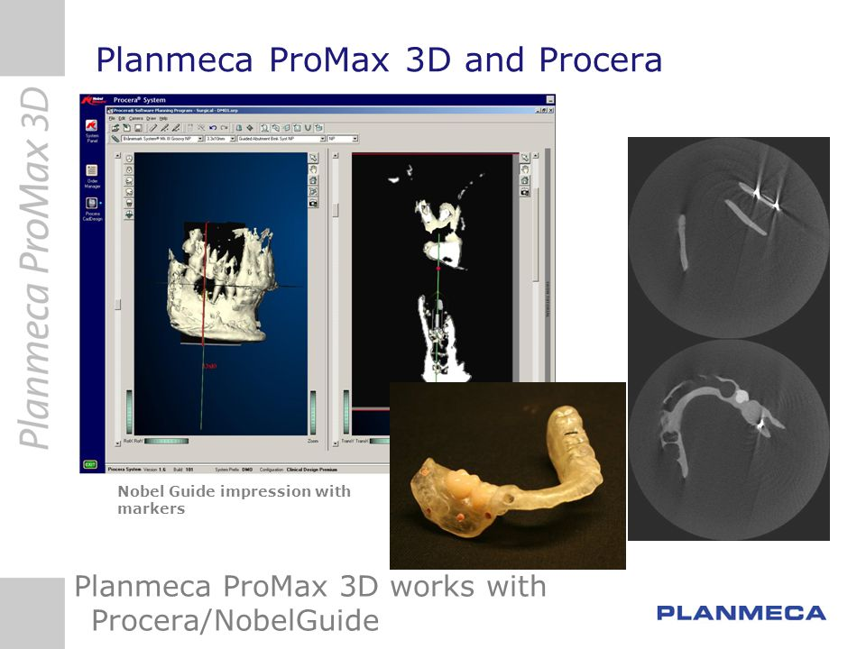 Planmeca ProMax 3D and Procera