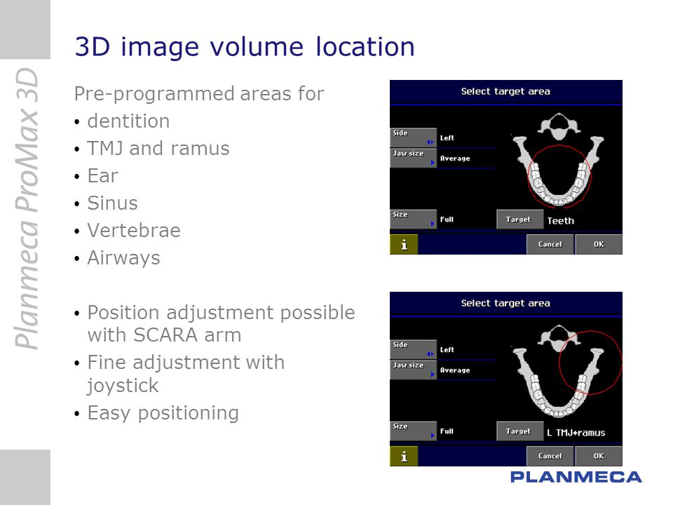 3D image volume location
