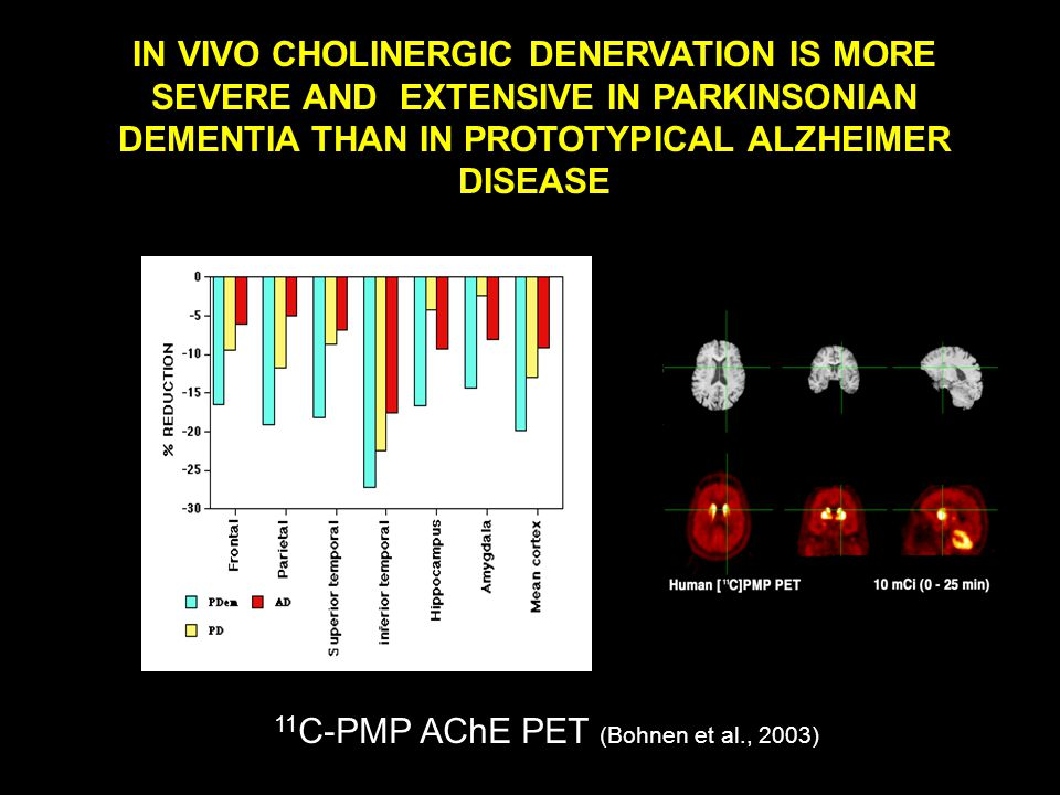 IN VIVO CHOLINERGIC DENERVATION IS MORE SEVERE AND EXTENSIVE IN PARKINSONIAN DEMENTIA THAN IN PROTOTYPICAL ALZHEIMER DISEASE