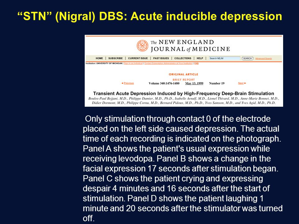 STN (Nigral) DBS: Acute inducible depression