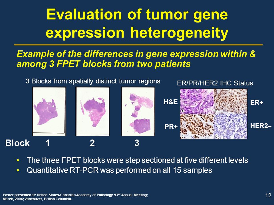Evaluation of tumor gene expression heterogeneity