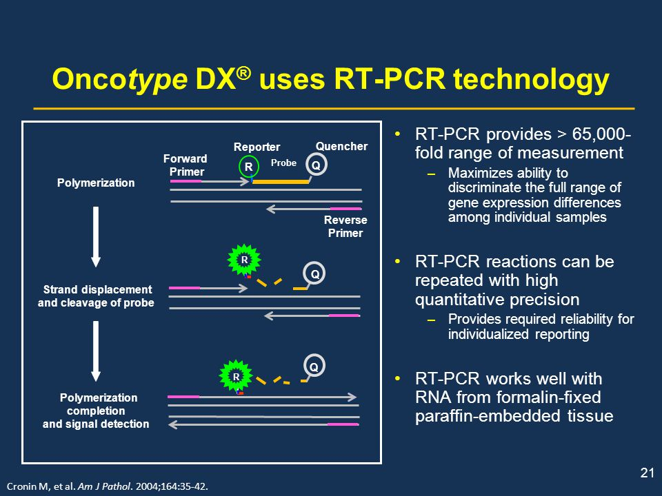 Oncotype DX® uses RT-PCR technology