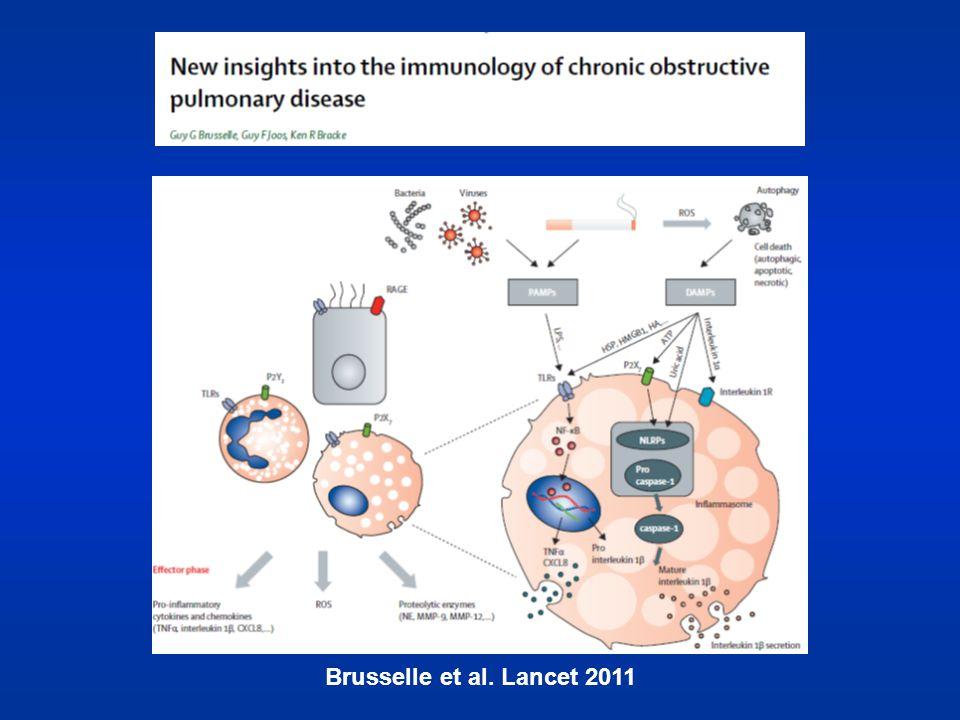 Brusselle et al. Lancet 2011