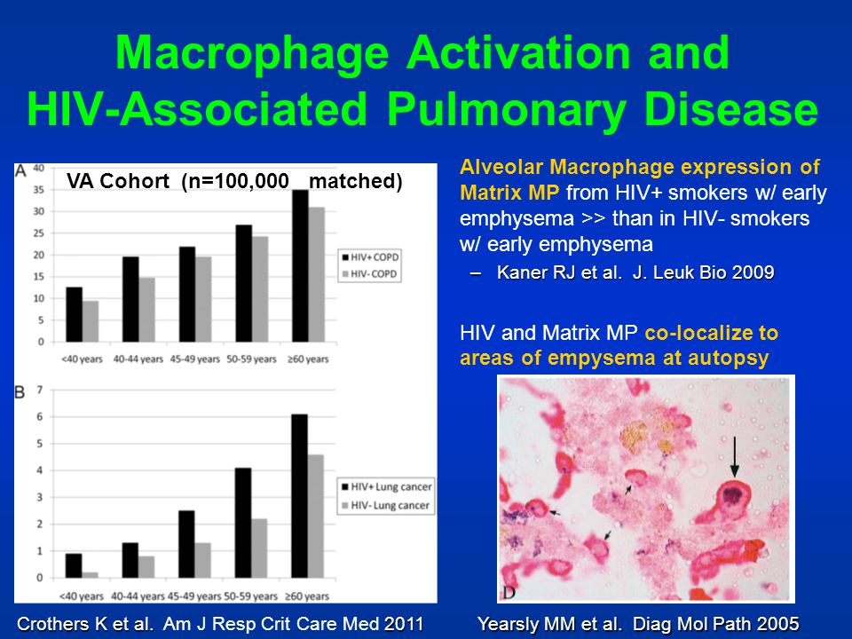 Macrophage Activation and HIV-Associated Pulmonary Disease
