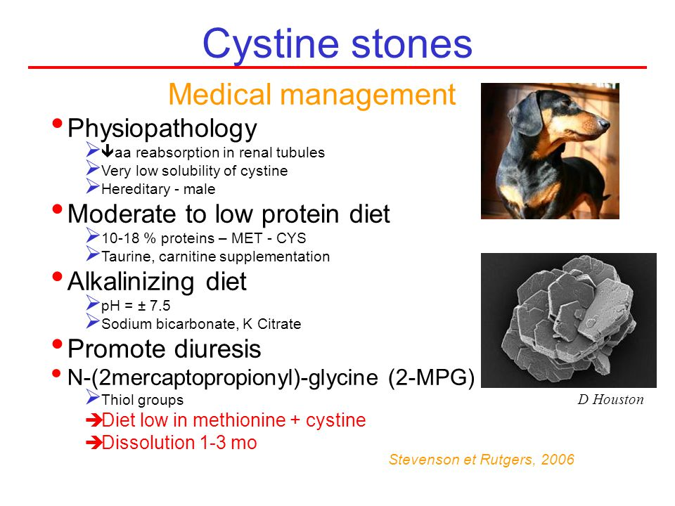Cystine stones Medical management Physiopathology