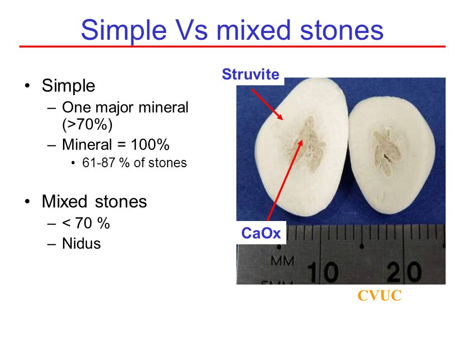 Simple Vs mixed stones Simple Mixed stones Struvite