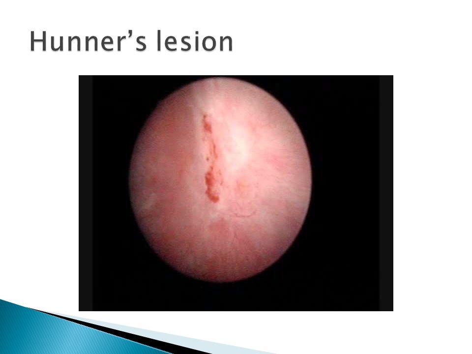 Hunner's lesion