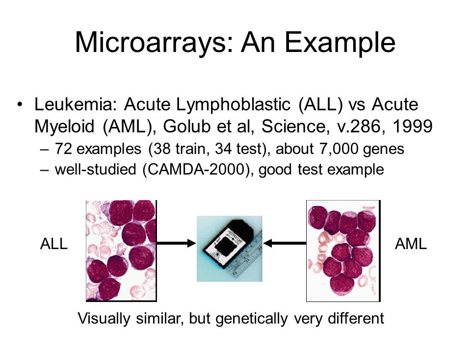 Microarrays: An Example