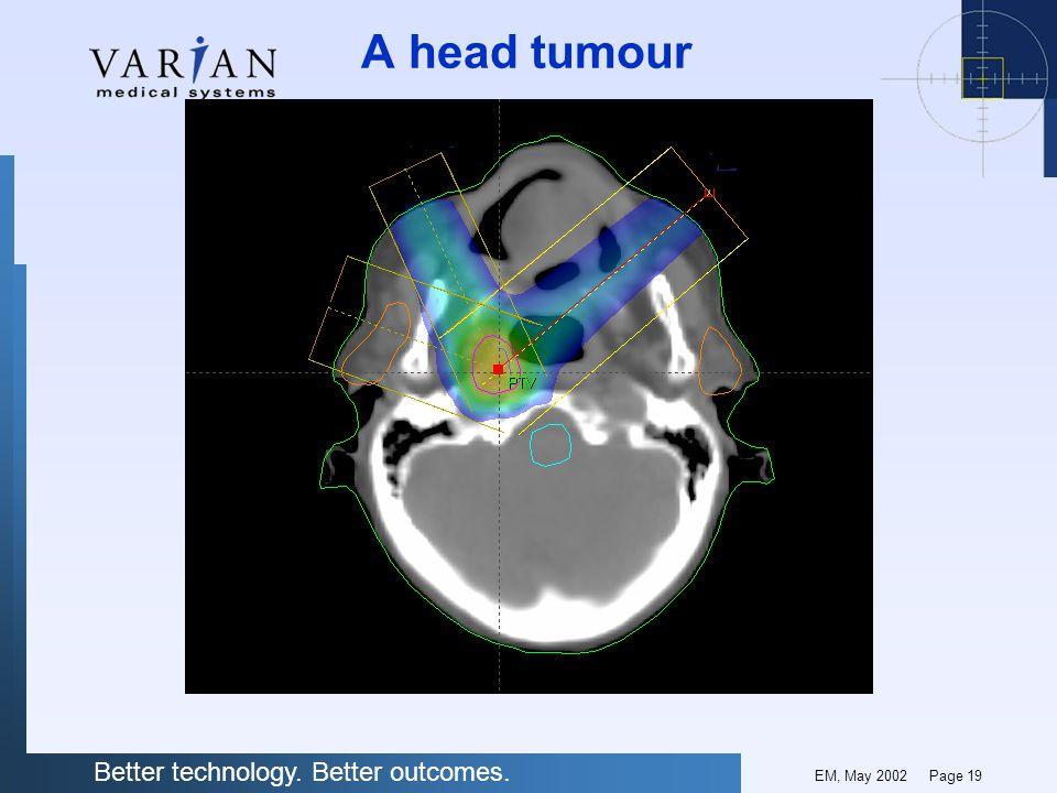 A head tumour