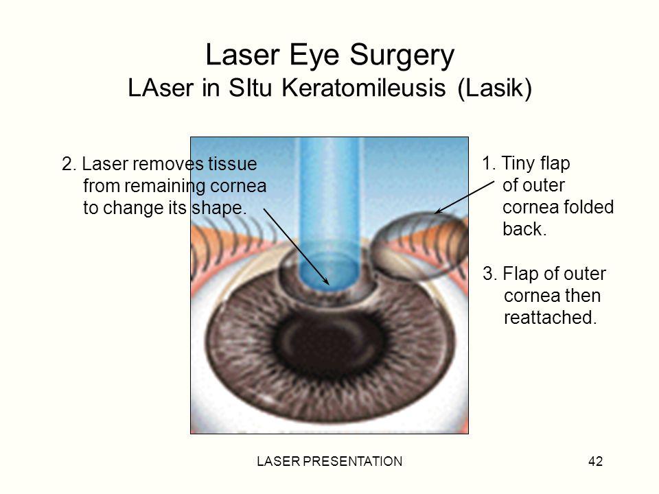 Laser Eye Surgery LAser in SItu Keratomileusis (Lasik)