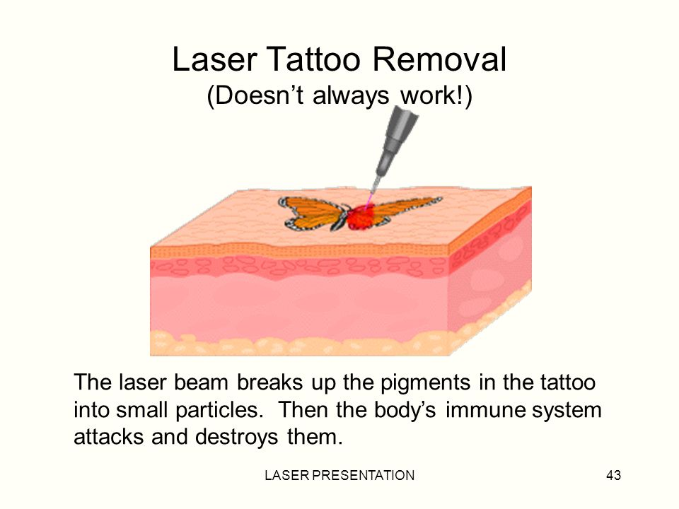 Laser Tattoo Removal (Doesn't always work!)