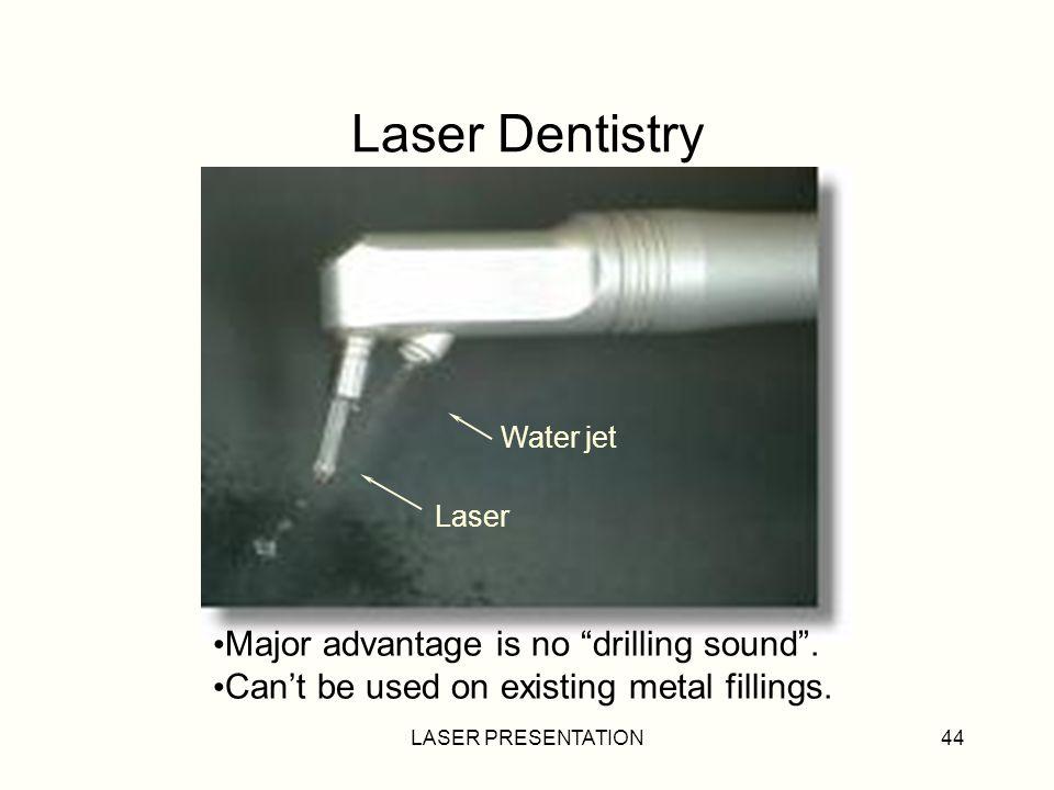 Laser Dentistry Major advantage is no drilling sound .