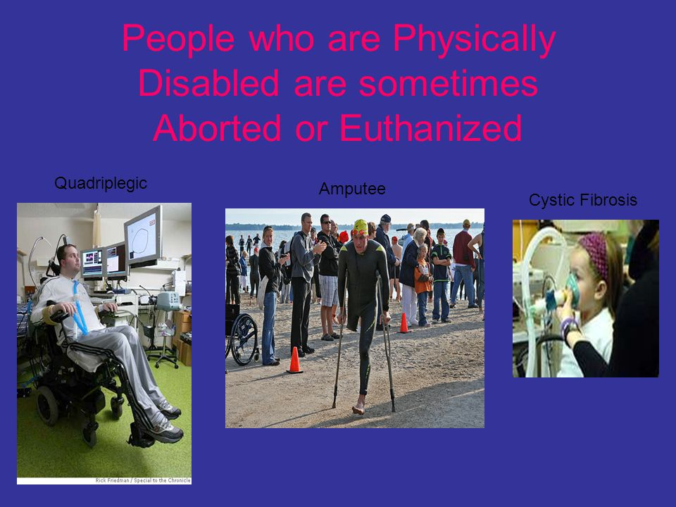 People who are Physically Disabled are sometimes Aborted or Euthanized